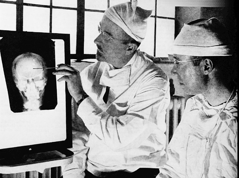 Doctors pointing to an xray of the brain